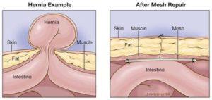 hernia mesh injury